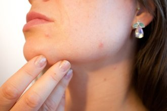 How To Diagnose a Problematic Skin And Tips For Proper Care!